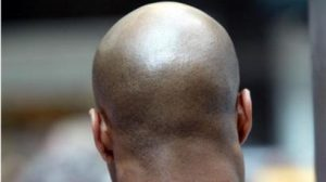 Top 10 Natural Remedies For Bald Head